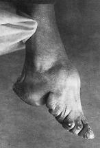 Hoof Boots Australia Sore Hooves Sore Horse